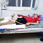 Xót xa cậu học sinh bị khối u khổng lồ phải cắt bỏ chân